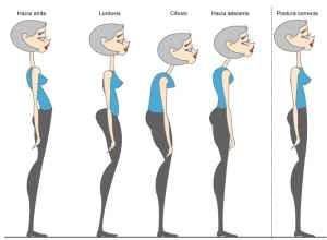 Physiotherapy Dubai Posture