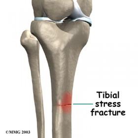 Shin Split chiropractic Dubai3