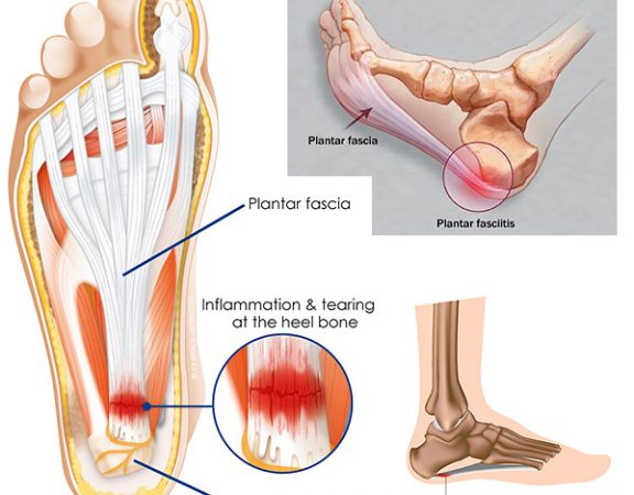 plantar-fasciitis Physiotherapy