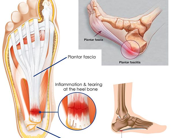 4275abe75e PLANTAR FASCIITIS / HEEL PAIN | Diversified Integrated Sports Clinic