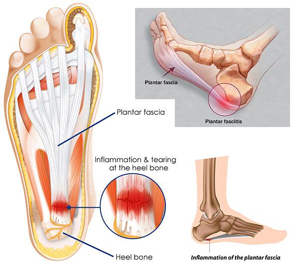 Plantar Fasciitis Heel Pain Diversified Integrated Sports Clinic