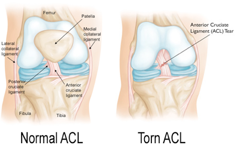Your Journey to ACL recovery | Diversified Integrated Sports Clinic