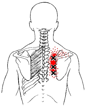 Rhomboids Trigger Points Or Interscapular Pain